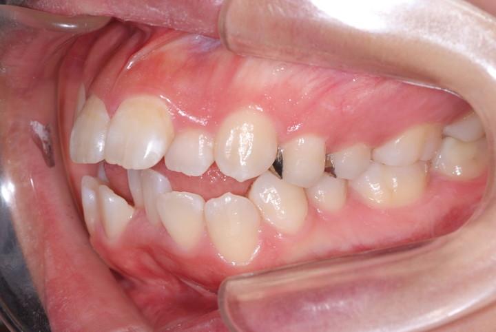 小 第 臼歯 一